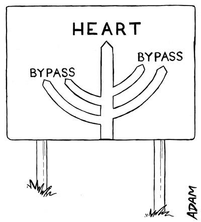 Heart bypass